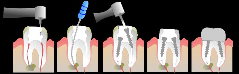 pose de couronne dentaire à drancy